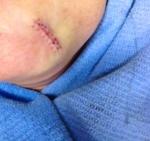 Mohs scar